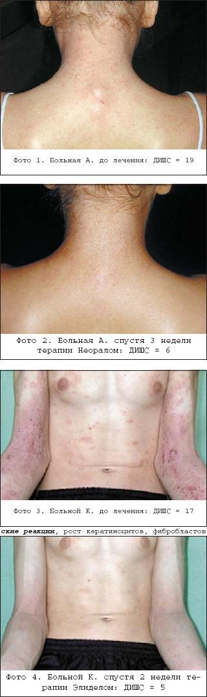 Атопический дерматит как лечить при лактации