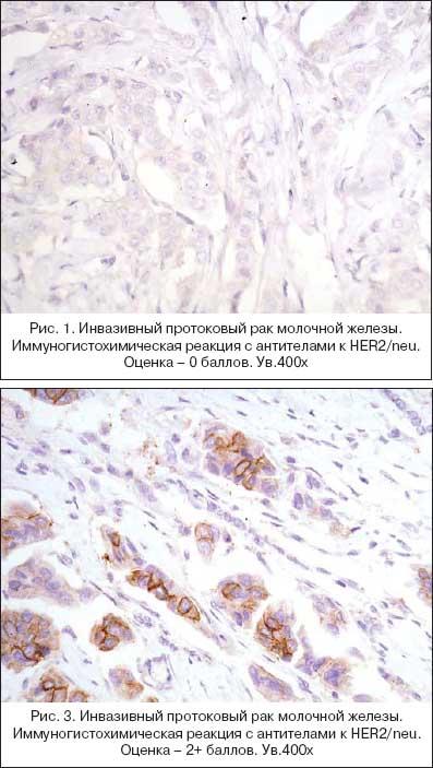 погоде схема лечения при раке молочной железы 3в стадии какое имя