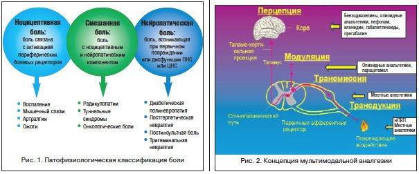 Характеристика хронической боли