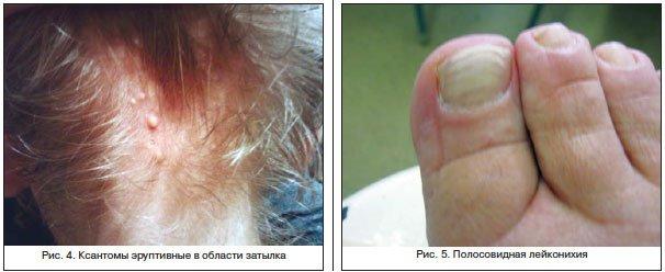 какие боли при циррозе печени у человека