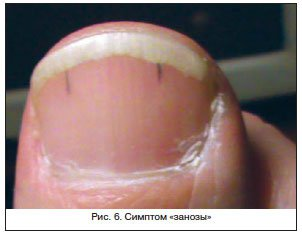 Склерозирование при циррозе