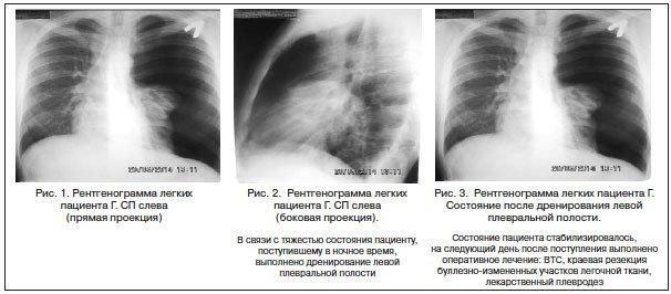 Спонтанный пневмоторакс неотложная