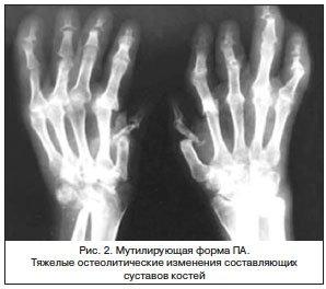 Рентгенологическая картина суставов стоп узи суставов ребёнку в красноярске