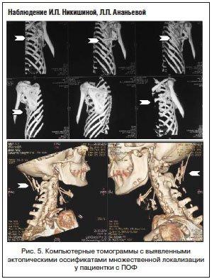 прогрессирующая оссифицирующая фибродисплазия фото