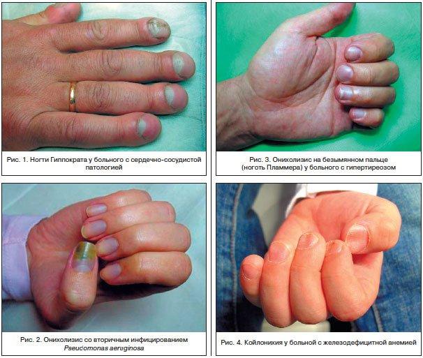Ониходистрофии: клиника, диагностика, лечение