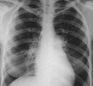 Органы грудной клетки здорового человека в рентгеновском изображении | Саламов Р.Ф., Семенова Н.А. | «РМЖ» №7 от 02.03.2000
