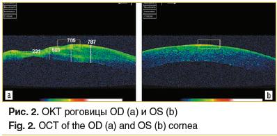 Рис. 2. ОКТ роговицы OD (a) и OS (b) Fig. 2. OCT of the OD (a) and OS (b) cornea