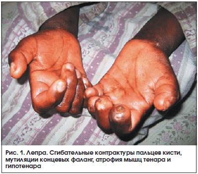 Ревматоидный полиартрит суставная форма пк-0 боль в суставах у ребенка причины