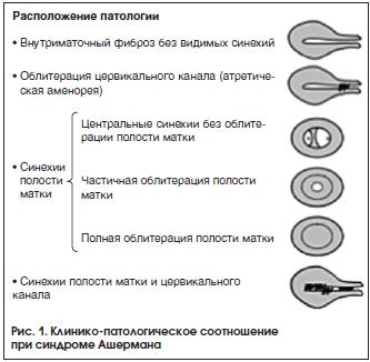 Рис. 1. Клинико-патологическое соотношение при синдроме Ашермана