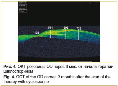 Рис. 4. OKT роговицы OD через 3 мес. от начала терапии циклоспорином Fig. 4. OСT of the OD cornea 3 months after the start of the therapy with cyclosporine