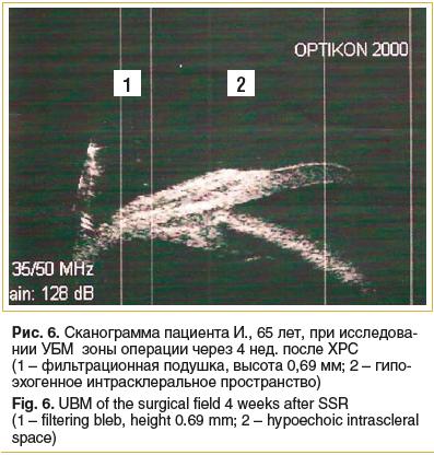 Рис. 6. Сканограмма пациента И., 65 лет, при исследова- нии УБМ зоны операции через 4 нед. после ХРС (1 – фильтрационная подушка, высота 0,69 мм; 2 – гипо- эхогенное интрасклеральное пространство) Fig. 6. UBM of the surgical field 4 weeks after SSR (1 – f