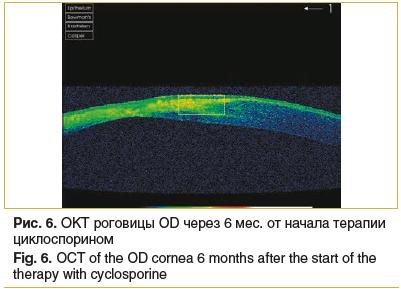 Рис. 6. OKT роговицы OD через 6 мес. от начала терапии циклоспорином Fig. 6. OСT of the OD cornea 6 months after the start of the therapy with cyclosporine