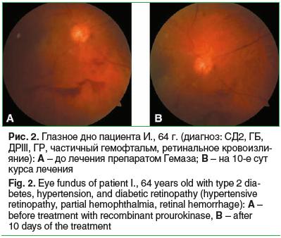Рис. 2. Глазное дно пациента И., 64 г. (диагноз: СД2, ГБ, ДРIII, ГР, частичный гемофтальм, ретинальное кровоизли- яние): A – до лечения препаратом Гемаза; B – на 10-е сут курса лечения