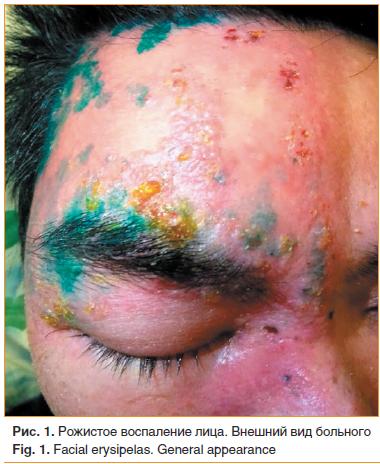 Рис. 1. Рожистое воспаление лица. Внешний вид больного