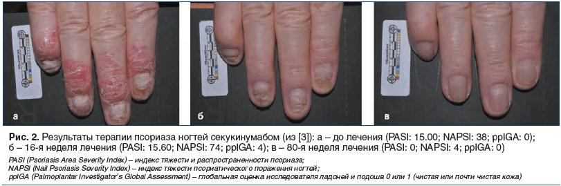 Рис. 2. Результаты терапии псориаза ногтей секукинумабом (из [3]): а – до лечения (PASI: 15.00; NAPSI: 38; ppIGA: 0); б – 16-я неделя лечения (PASI: 15.60; NAPSI: 74; ppIGA: 4); в – 80-я неделя лечения (PASI: 0; NAPSI: 4; ppIGA: 0)