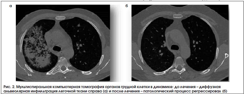 Рис. 2. Мультиспиральная компьютерная томография органов грудной клетки в динамике: до лечения – диффузная альвеолярная инфильтрация легочной ткани справа (а) и после лечения – патологический процесс регрессировал (б)