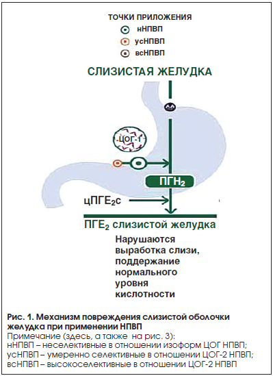 Рис. 1. Механизм повреждения слизистой оболочки желудка при применении НПВП