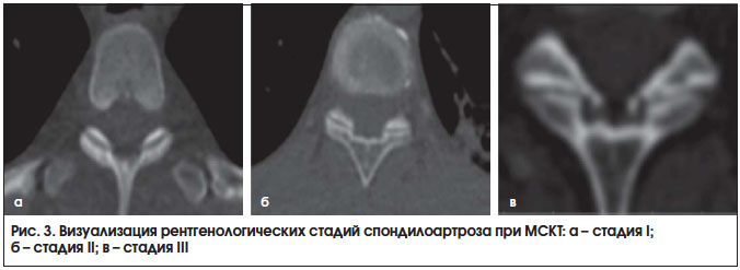 Выраженный сегментарный остеоартроз дугоотростчатых суставов болит колено тяжело ходить как будто шипы внутри