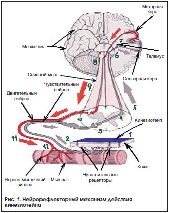 Применение методики кинезиотейпирования у пациентов неврологического профиля Рис. № 1 | Статья РМЖ