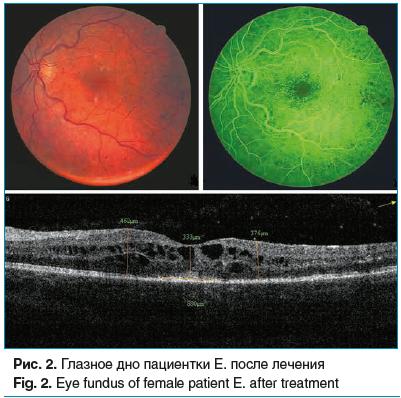Рис. 2. Глазное дно пациентки Е. после лечения