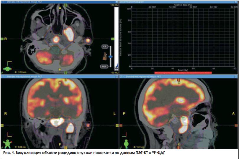 Рис. 1. Визуализация области рецидива опухоли носоглотки по данным ПЭТ-КТ с 18F-ФДГ