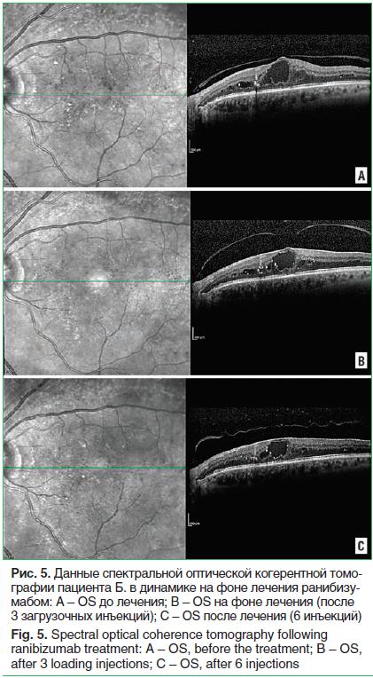Рис. 5. Данные спектральной оптической когерентной томо- графии пациента Б. в динамике на фоне лечения ранибизу- мабом: A – OS до лечения; B – OS на фоне лечения (после 3 загрузочных инъекций); C – OS после лечения (6 инъекций) Fig. 5. Spectral optical co
