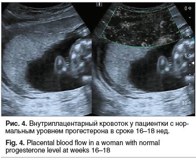 Рис. 4. Внутриплацентарный кровоток у пациентки с нормальным уровнем прогестерона в сроке 16–18 нед.
