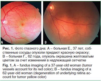Рис. 1. Фото глазного дна: A – больная Е., 37 лет, соб- ственные сосуды опухоли придают красную окраску; B – больная Г., 62 года, опухоль окрашена желтоватым цветом за счет изменений в надлежащей сетчатке Fig. 1. A – fundus imaging of a 37-year-old woman