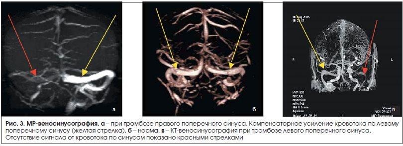 Рис. 3. МР-веносинусография.