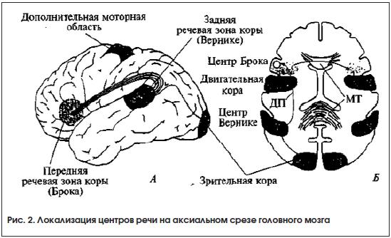 Рис. 2. Локализация центров речи на аксиальном срезе головного мозга