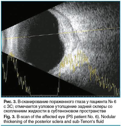 Рис. 3. В-сканирование пораженного глаза у пациента № 6 с ЗС; отмечается узловое утолщение задней склеры со скоплением жидкости в субтеноновом пространстве Fig. 3. B-scan of the affected eye (PS patient No. 6). Nodular thickening of the posterior sclera a