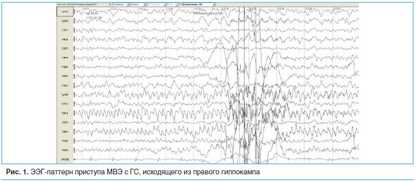 Рис. 1. ЭЭГ-паттерн приступа МВЭ с ГС, исходящего из правого гиппокампа
