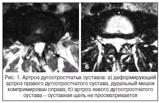 Рис. 1. Артроз дугоотростчатых суставов: а) деформирующий артроз правого дугоотростчатого сустава, дуральный мешок компримирован справа; б) артроз левого дугоотростчатого сустава – суставная щель не просматривается
