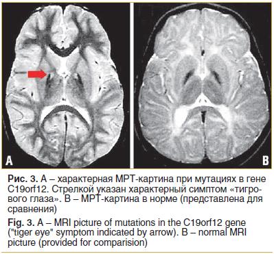 """Рис. 3. А – характерная МРТ-картина при мутациях в гене C19orf12. Стрелкой указан характерный симптом «тигрового глаза». В – МРТ-картина в норме (представлена для сравнения) Fig. 3. A – MRI picture of mutations in the C19orf12 gene (""""tiger eye"""" symptom in"""