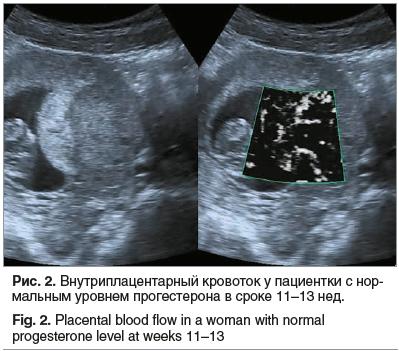 Рис. 2. Внутриплацентарный кровоток у пациентки с нормальным уровнем прогестерона в сроке 11–13 нед.