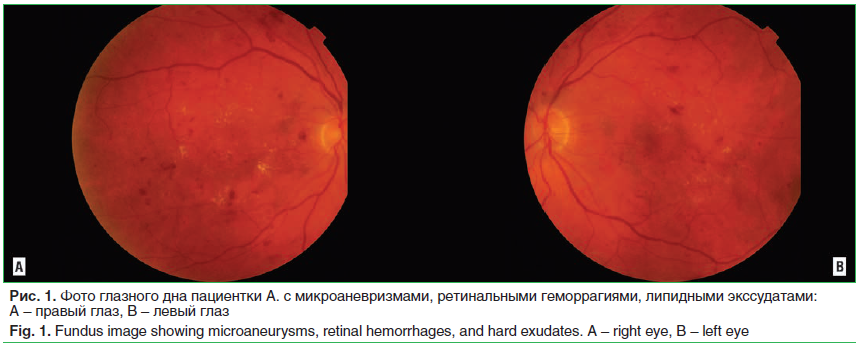 Рис. 1. Фото глазного дна пациентки А. с микроаневризмами, ретинальными геморрагиями, липидными экссудатами: A – правый глаз, B – левый глаз Fig. 1. Fundus image showing microaneurysms, retinal hemorrhages, and hard exudates. A – right eye, B – left eye