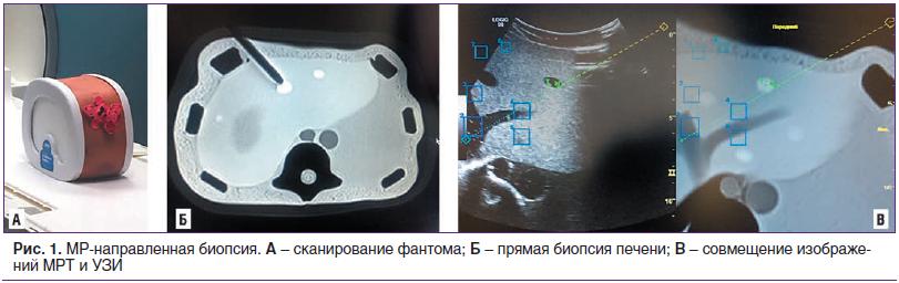 Рис. 1. МР-направленная биопсия. А – сканирование фантома; Б – прямая биопсия печени; В – совмещение изображений МРТ и УЗИ