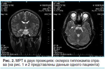 Рис. 2. МРТ в двух проекциях: склероз гиппокампа справа (на рис. 1 и 2 представлены данные одного пациента)