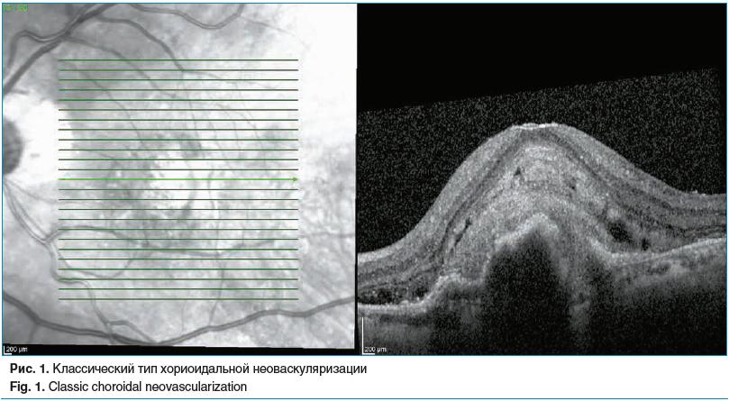 Рис. 1. Классический тип хориоидальной неоваскуляризации Fig. 1. Classic choroidal neovascularization
