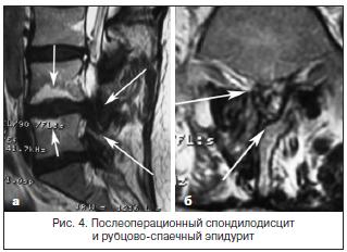 Рис. 4. Послеоперационный спондилодисцит и рубцово-спаечный эпидурит