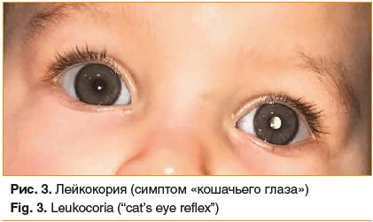 """Рис. 3. Лейкокория (симптом «кошачьего глаза») Fig. 3. Leukocoria (""""cat's eye reflex"""")"""