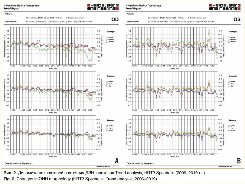 Рис. 2. Динамика показателей состояния ДЗН, протокол Trend analysis, HRT3 Spectralis (2006–2019 гг.) Fig. 2. Changes in ONH morphology (HRT3 Spectralis, Trend analysis, 2006–2019)