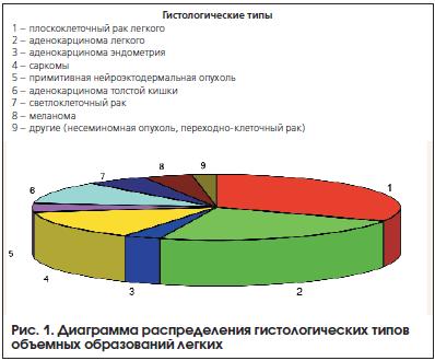 Рис. 1. Диаграмма распределения гистологических типов объемных образований легких