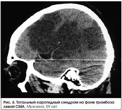 Рис. 6. Тотальный каротидный синдром на фоне тромбоза левой СМА