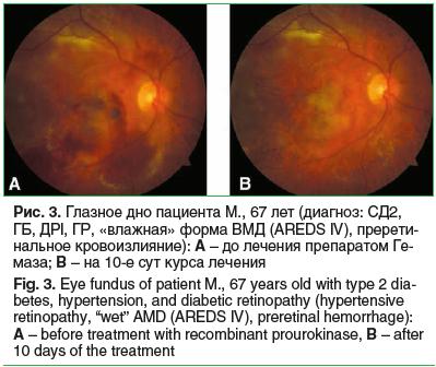 Рис. 3. Глазное дно пациента М., 67 лет (диагноз: СД2, ГБ, ДРI, ГР, «влажная» форма ВМД (AREDS IV), пререти- нальное кровоизлияние): A – до лечения препаратом Гемаза; B – на 10-е сут курса лечения