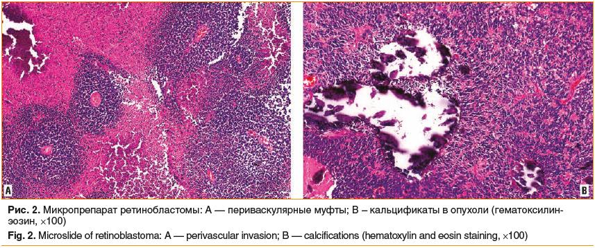 Рис. 2. Микропрепарат ретинобластомы: А — периваскулярные муфты; В – кальцификаты в опухоли (гематоксилин- эозин, ×100) Fig. 2. Microslide of retinoblastoma: A — perivascular invasion; B — calcifications (hematoxylin and eosin staining, ×100)