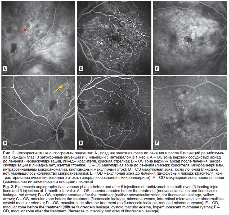 Рис. 2. Флюоресцентные ангиограммы пациентки А., поздняя венозная фаза до лечения и после 6 инъекций ранибизума- ба в каждый глаз (3 загрузочные инъекции и 3 инъекции с интервалом в 1 мес.): A – OS зона верхних сосудистых аркад до лечения (неоваскуляризац