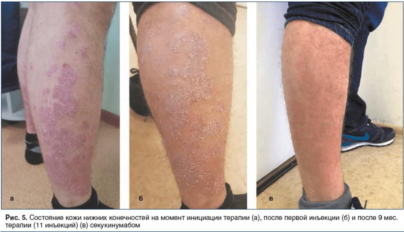 Рис. 5. Состояние кожи нижних конечностей на момент инициации терапии (а), после первой инъекции (б) и после 9 мес. терапии (11 инъекций) (в) секукинумабом