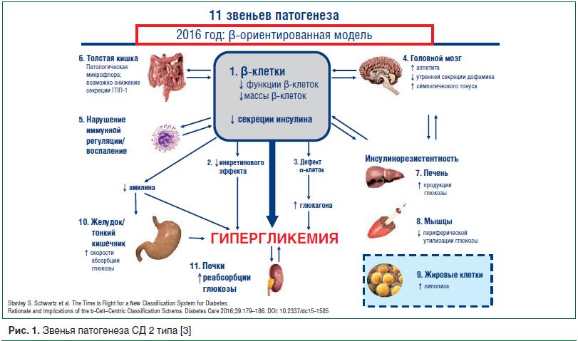 Рис. 1. Звенья патогенеза СД 2 типа [3]