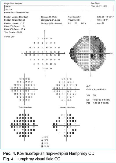Рис. 4. Компьютерная периметрия Humphrey OD